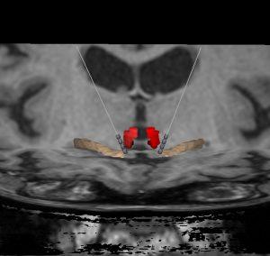 Estimulação Paraforniciana em pacientes com Doença de Alzheimer