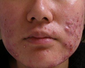 Método de ovulação billings e acne